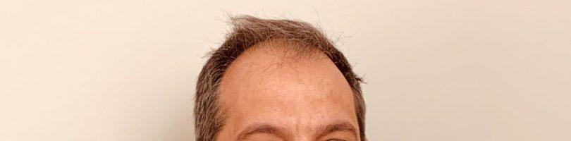 Dott. Marco Bottino – Agopuntura